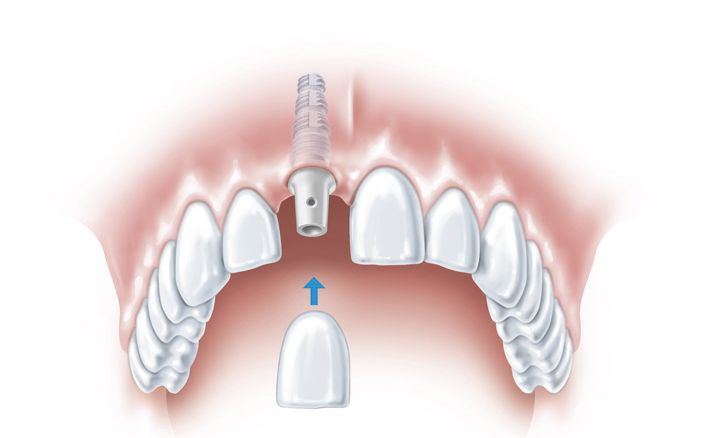 Top Reasons For Your Patients to Choose Dental Implants