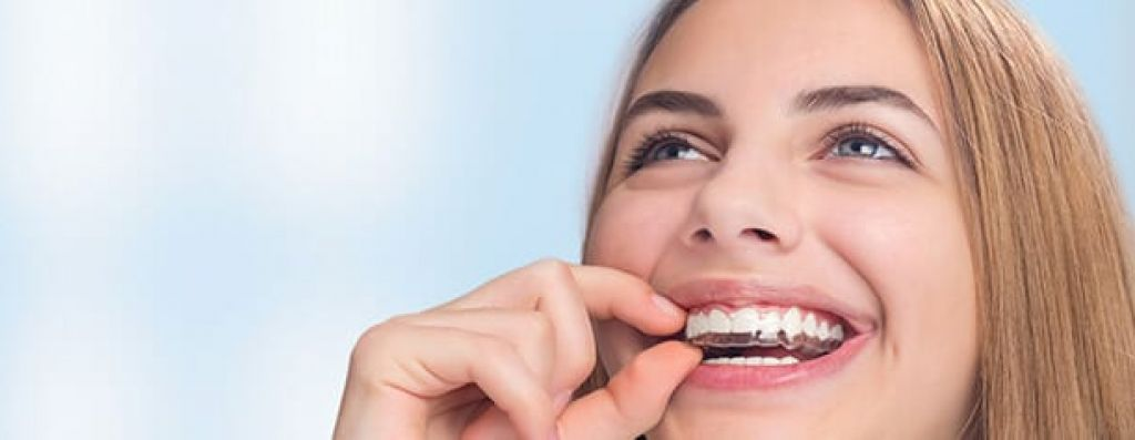 Removable Braces for Adults